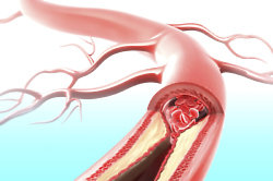 Do you know what causes a blood clot?