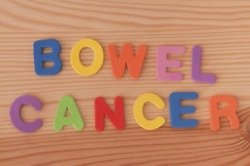 What do you know about bowel cancer?