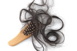 Hair loss is usually a result of Chemotherapy