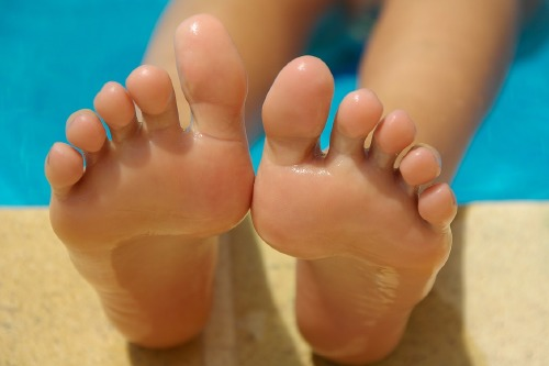 How can you keep your feet verruca and wart free this summer?