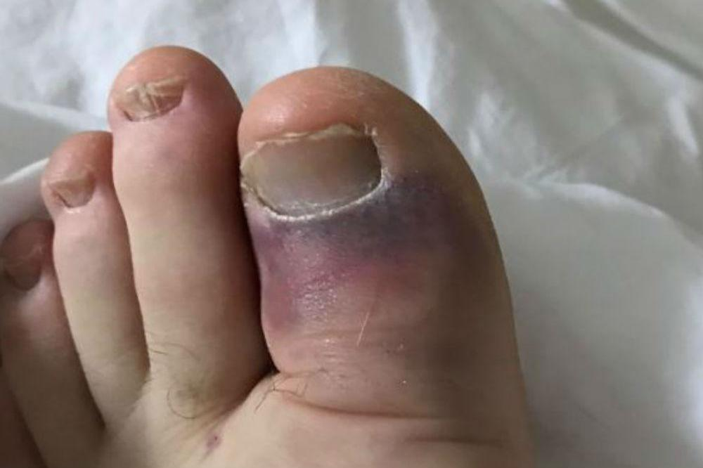 Ross Kemp's broken toe (c) Twitter