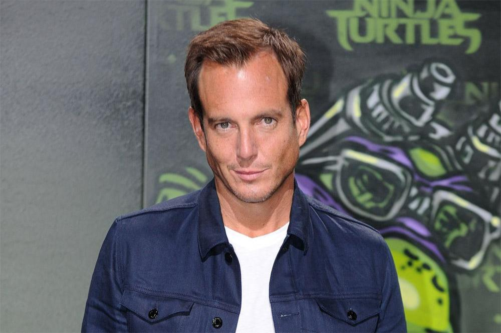Will arnett hair plugs