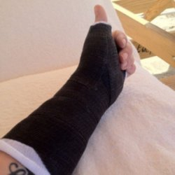 Kelly Osbourne's thumb cast