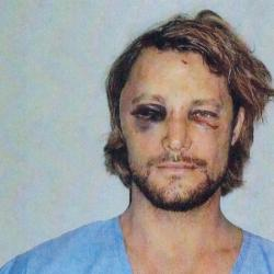 Gabriel Aubry after his fight with Oliver Martinez