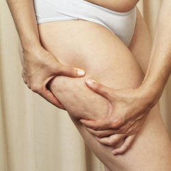 Do you suffer with cellulite?