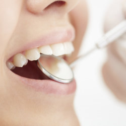We need to be aware of the effect of our diet on our teeth