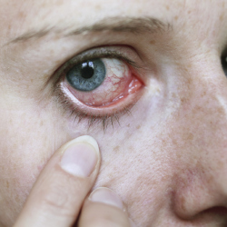Do you suffer with allergies in the summer?