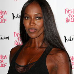 Naomi Campbell suffers from women's hair loss