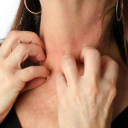 Psoriasis is a chronic skin condition which causes red, flaky, crusty patches of skin