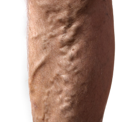 3 in 10 suffer with varicose veins